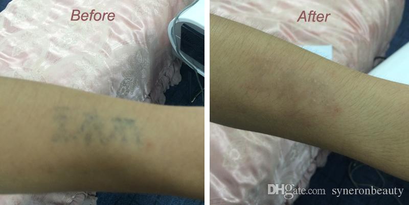 핫 판매 Nd Yag 레이저 영구 문신 제거 기계
