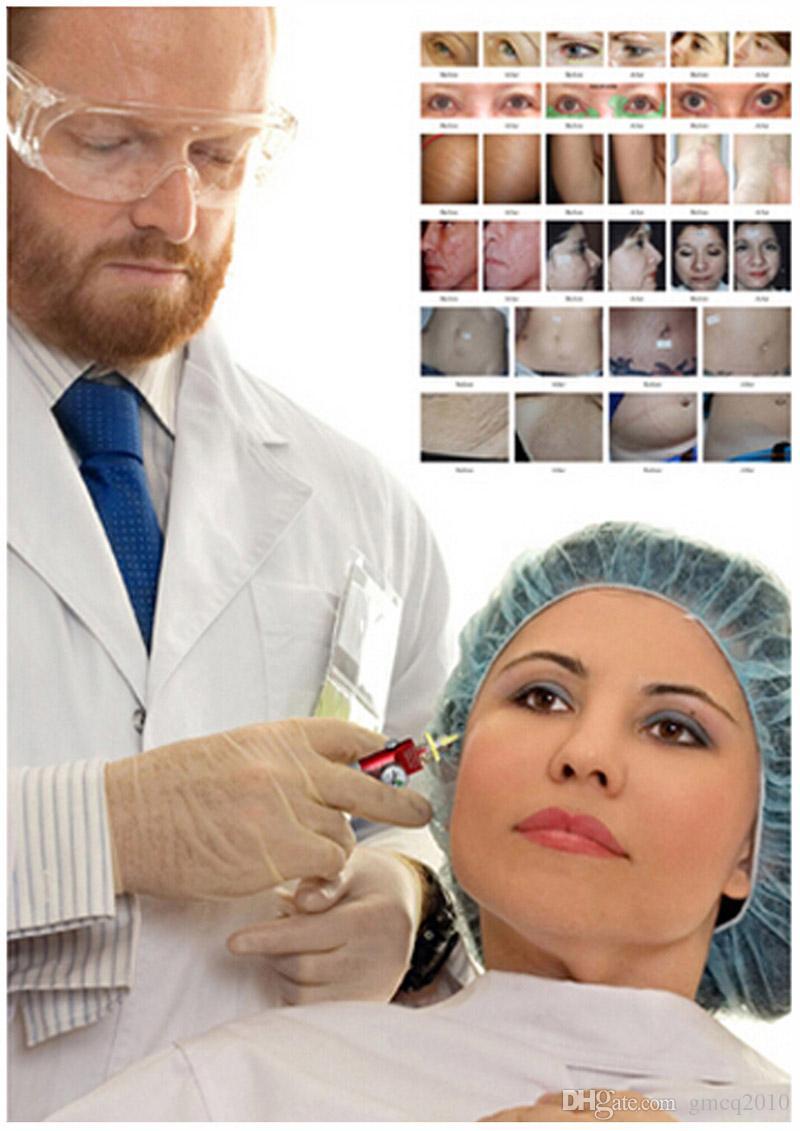 CDT CarboxyTherapy Pen c2p Pelle fiato il trattamento viso dimagrante macchina rimozione delle rughe occhio
