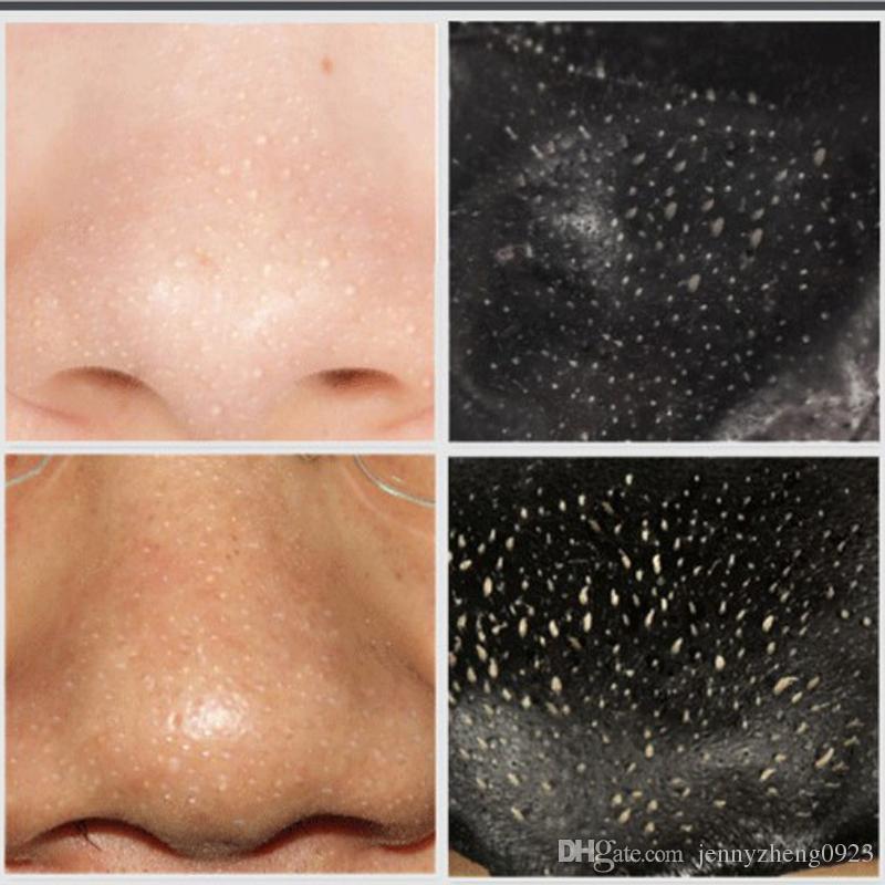 Beauty & Health Face Care Facial Mask Black Mask Blackhead Remover Black Head EX Pore Strip Peeling off