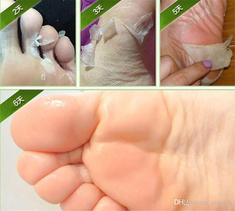 Exfoliating Peel Foot Mask Baby Soft Feet Remove Hard Dead Skin Callus Care Professional Feet sox Mask Foot Care DHL free shiping