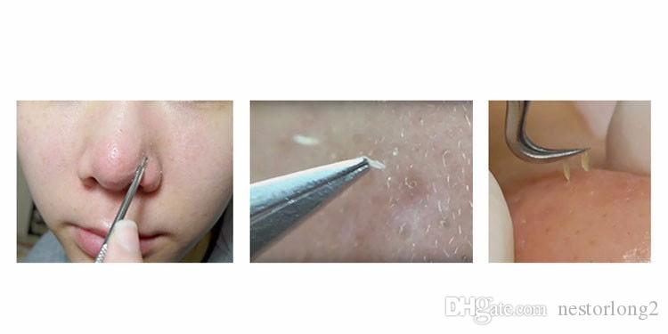 5 Teile / satz Mitesser Makel Akne Pickel Extractor Remover-Tool Set Gesicht Hautpflege mitesser pinzette Edelstahl Nadel Kit