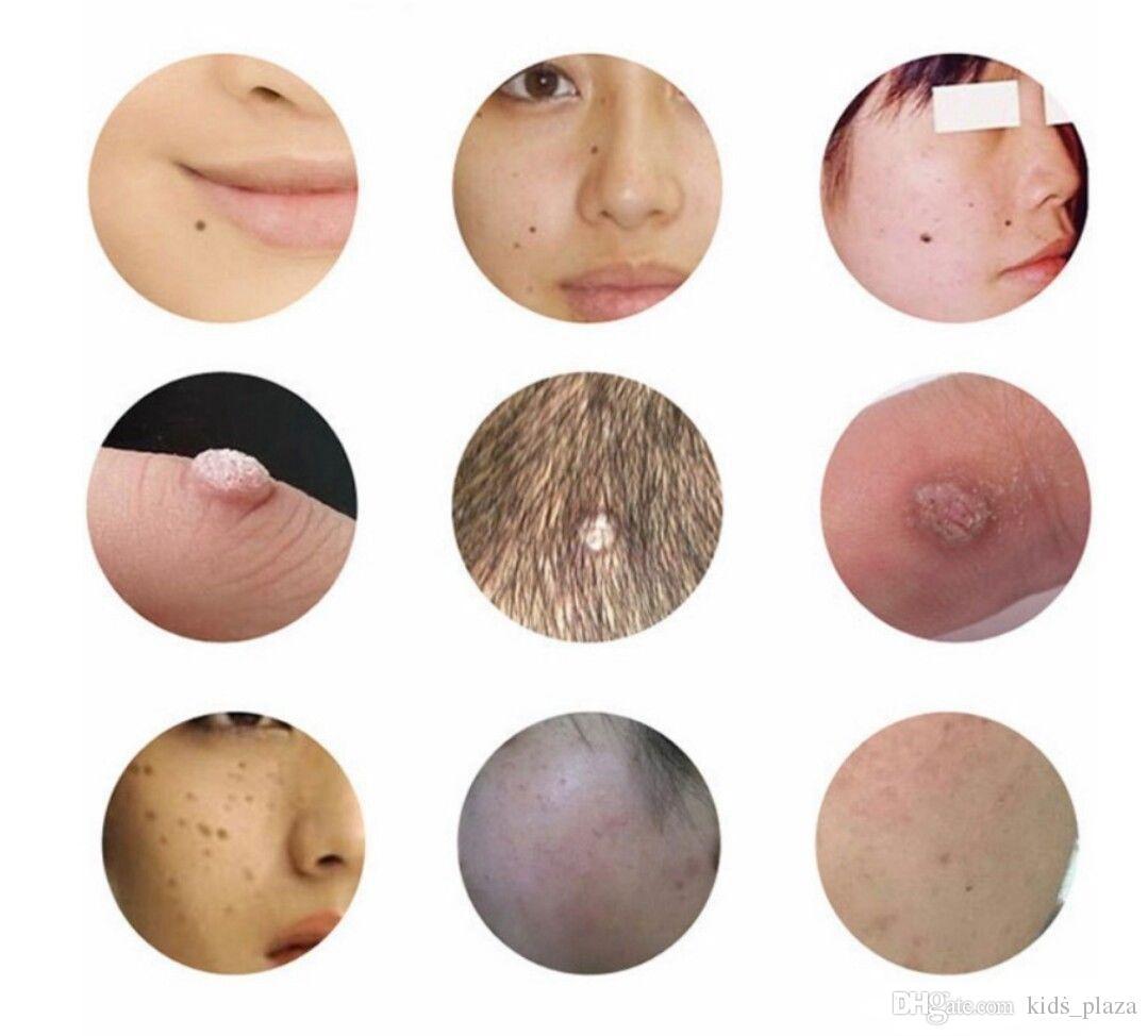 Dark Spot Wart Tattoo Extractor de topos Eliminación de cuidado de la piel Dispositivo láser de belleza Recargable portátil Uso en el hogar Suministro de maquillaje