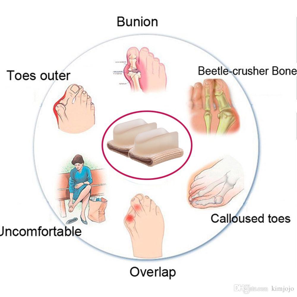 Alluce Valgo Separator Ortesi Toes Corrector Alluce Toe Separator Silicone Borsite Pad Protezioni Cura del piede