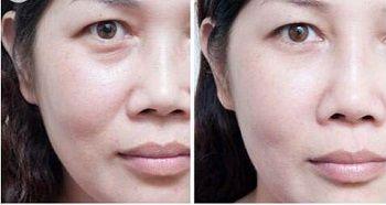 6 em 1 spray de oxigênio facial máquina de microdermoabrasão microdermoabrasão limpeza da pele de cristal microdermoabrasão preço da máquina