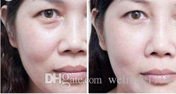 Spa profesional fraccional rf piel termágica rejuvenecimiento de la piel blanqueamiento anti arrugas fraccional máquina rf