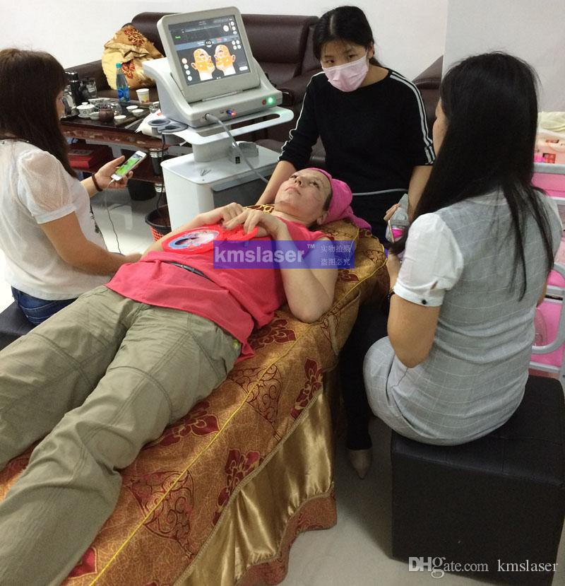 Máquina do ultra-som da máquina dos cuidados com a pele da cara da remoção do enrugamento de HIFU máquina nova do hifu 2016 para o salão de beleza