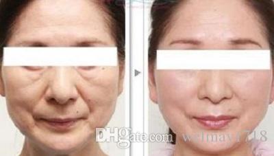 rejuvenescimento da pele do ipl do portbale ipl máquina do ipl da remoção do cabelo do tratamento da acne