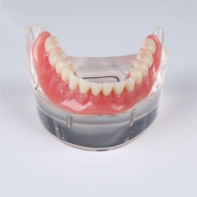 Großhandel Großhandels Menschliche Dentallabor Prothese Zähne ...