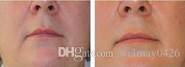 remoção permanente do cabelo do laser novo do diodo da clínica 808nm do salão de beleza dos termas pelo laser