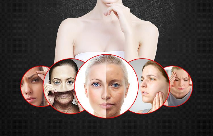 2017 nuevas ideas centraron rf eliminación de arrugas rf máquina de masaje facial para la venta