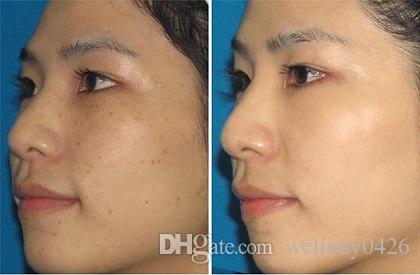 سبا صالون عيادة IPL لإزالة الشعر المعدات المنزلية الجمال IPL الجلد تبييض الشعيرات SHR