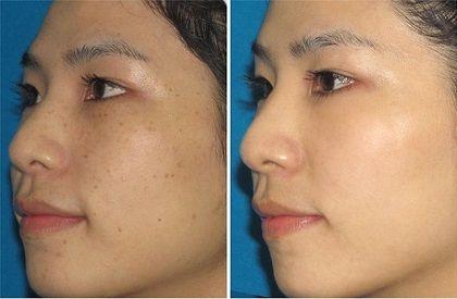 portable ipl shr opt machine spot acne removal tools shr hair removal machine opt shr