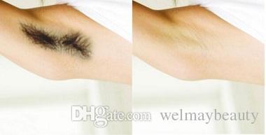Salon Clinic Spa Vendita calda Vendita calda Laser Depilazione del laser capelli Laser Demover Capelli Prezzo