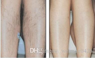 2018 portable spa salon clinic use ipl shr hair removal machine