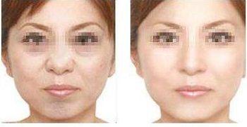 6 in 1spa acqua getto di ossigeno buccia scrubber ad ultrasuoni pulizia dei pori viso scrubber pulizia della pelle pulizia del viso ad ultrasuoni