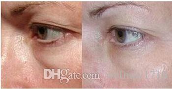 3 얼굴 회춘 피부 관리 무선 주파수 RF 얼굴 피부 관리 장비 RF 1 개 라디오 주파수