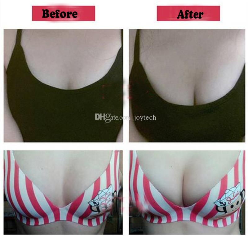 Fashion Silicone Push-Up Strapless Backless Self-Adhesive Gel Magic Stick Invisible Bra black pink blue and nude For women A B C D SIZE