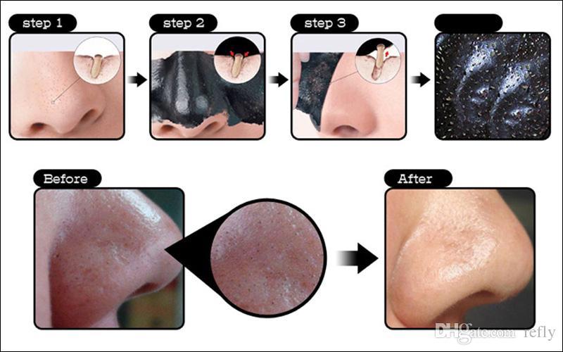 Shills Derin Temizlik Siyah Maske Gözenek Temizleyici 50 ml Arındırıcı Peel-Off Maskesi Siyah Nokta Yüz Maskesi Ücretsiz DHL Nakliye