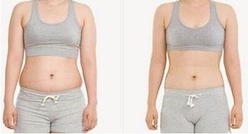 Presso Lymphdrainage Vakuumtherapie Gewichtsverlust Durchblutungs-Massagegerät Vakuum-Therapie-Maschine