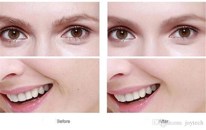Elétrica Rosto Limpador Vibrar Os Poros Limpo Escova De Limpeza De Silicone Massageador Vibração Facial Cuidados Com A Pele Spa Massagem