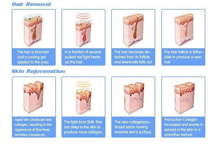e light facial treatment