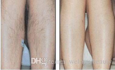 Diodo da remoção do cabelo profissional diodo laser spa 808nm diodo beleza equipamentos de beleza