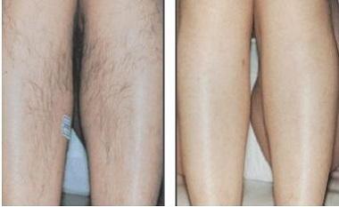 máquina do laser da remoção do cabelo do salão de beleza do spa cinic remoção profissional do cabelo do laser do diodo