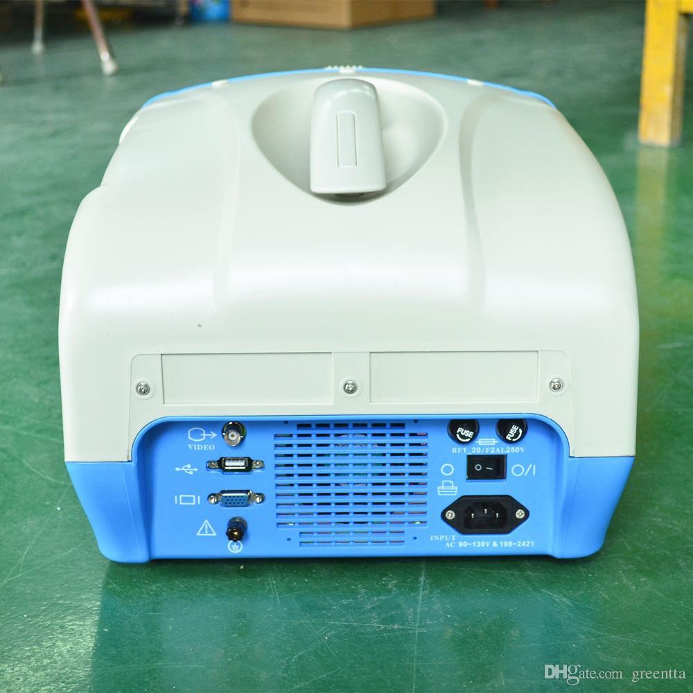 Ultrasound scanner, ultrasound machine, ultrasonic diagnostic equipment with one probe, USG hot sale ultrasonido echography
