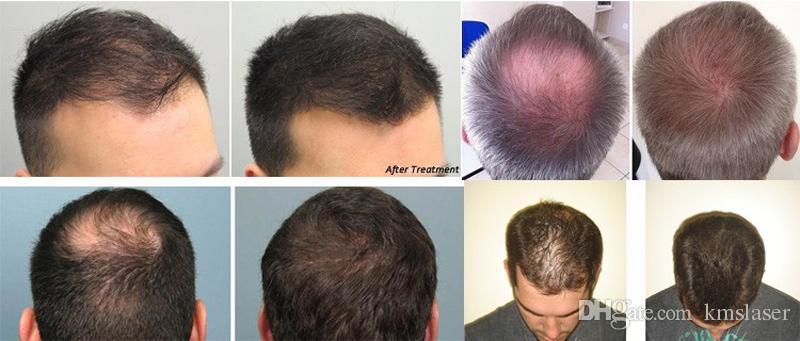 Kaliteli 650 nm diyot lazer saç büyüme makinesi güzellik saç dökülmesi tedavisi saç çıkma lazer güzellik makineleri ücretsiz kargo