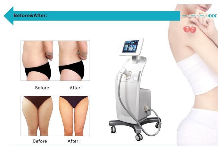 Most popular use fat reducing liposonic 2018 no surgery no pain body shaper machin/ 8mm 13mm Liposonix fat reducing body shape machine
