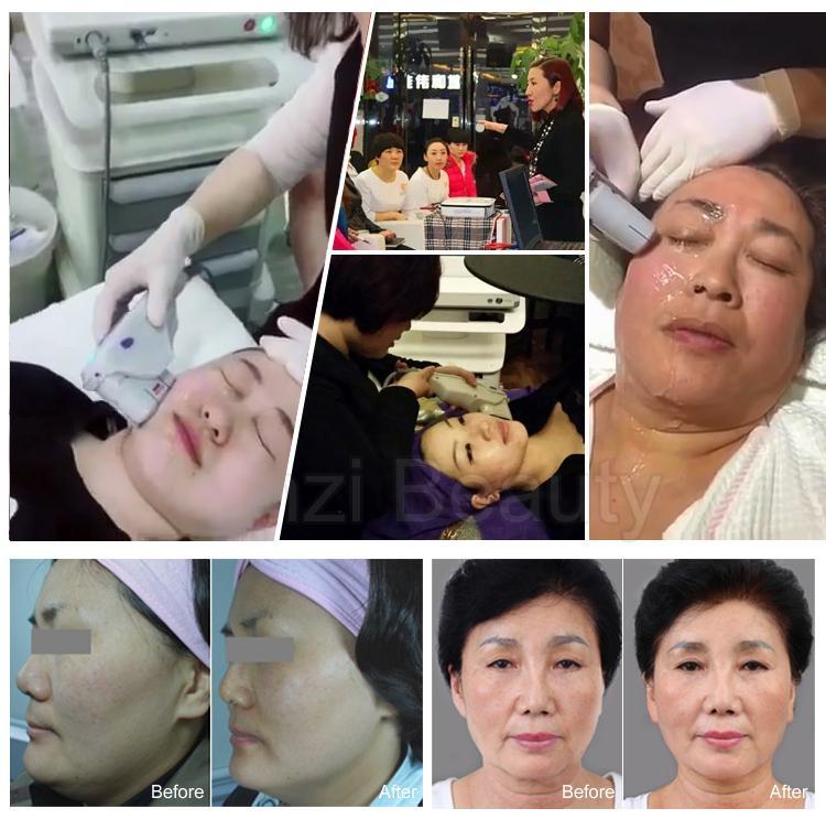 Güzellik salonu popüler hifu yüz germe cihazı yüz germe makinesi kırışıklık giderme