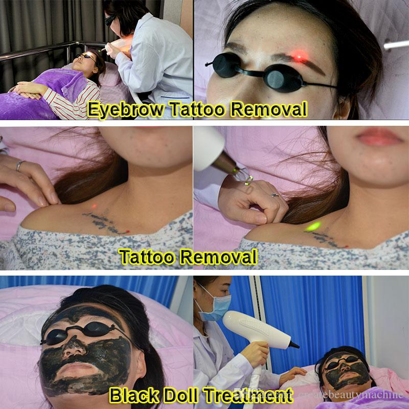 Professional laser tattoo removal machine q-switch nd yag laser black doll treatment 5,000,000 Shots