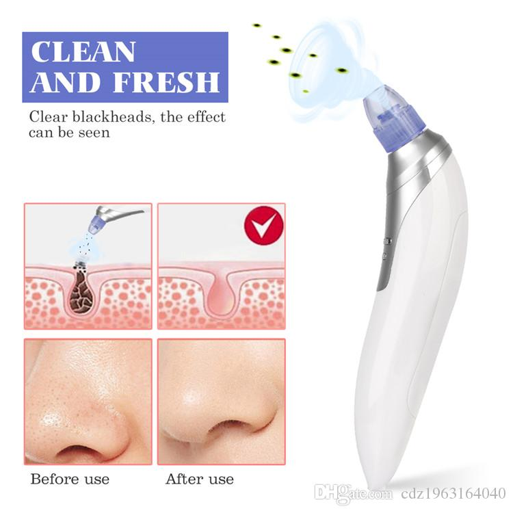 Blackhead removal tool professional portable black head vacuum with strong  suction popular in salon or home use as gift