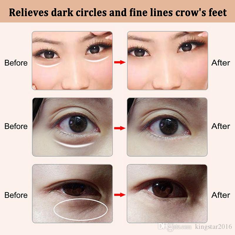 Frete Grátis Galvânica Olho Massageador Olhos Rugas Removedor de Círculos Escuros Anti-envelhecimento Mini Elétrica Massagem Nos Olhos Vibração Rugas Remover