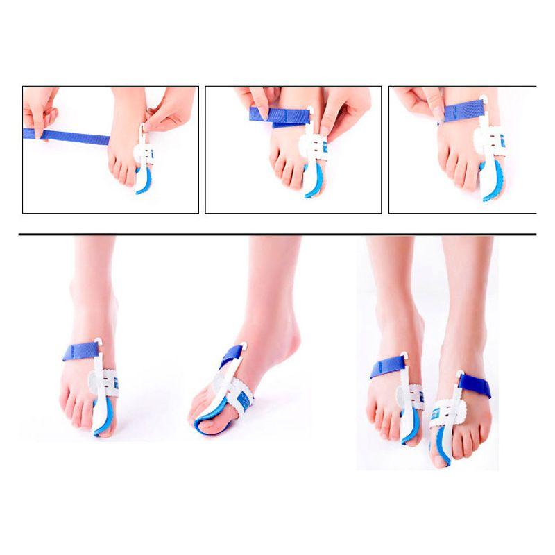 Appareil à oignons Orthèses orthopédiques Hallux Valgus Correction des orteils Nuit Correcteur de pieds Correction du pouce Thumb