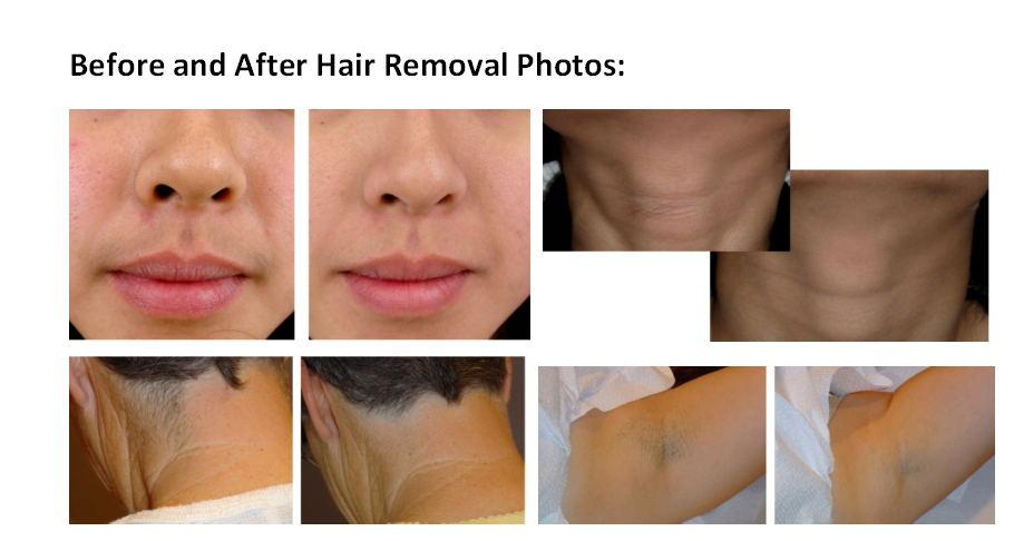 2018 new 810NM Permanent Laser Hair Removal System Legs Face Bikini Armpit Lip Facial Epilator