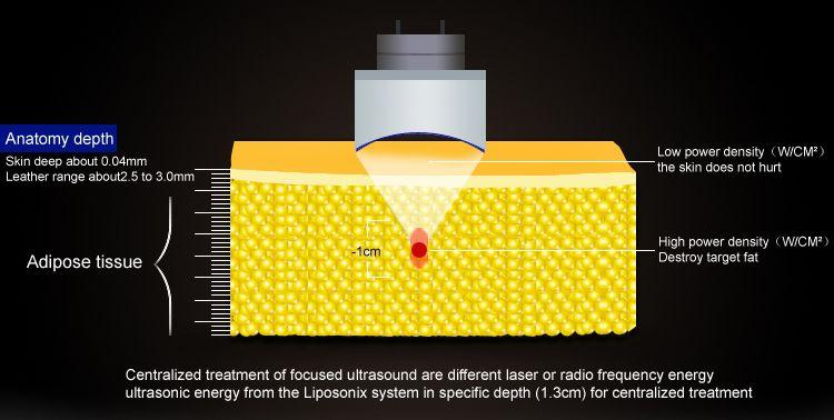 Professional Liposonix Ultrasonic Liposuction Machine Lipo HIFU Body Slimming Ultrashape Liposonix Weight Loss Machine For Salon Clinic Use