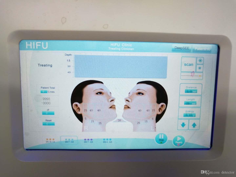 2018 휴대용 hifu 고강도 초점을 맞춘 초음파 liposonix 지방 굽기 기계 hifu 주름 제거 노화 방지 얼굴 아름다움 장비