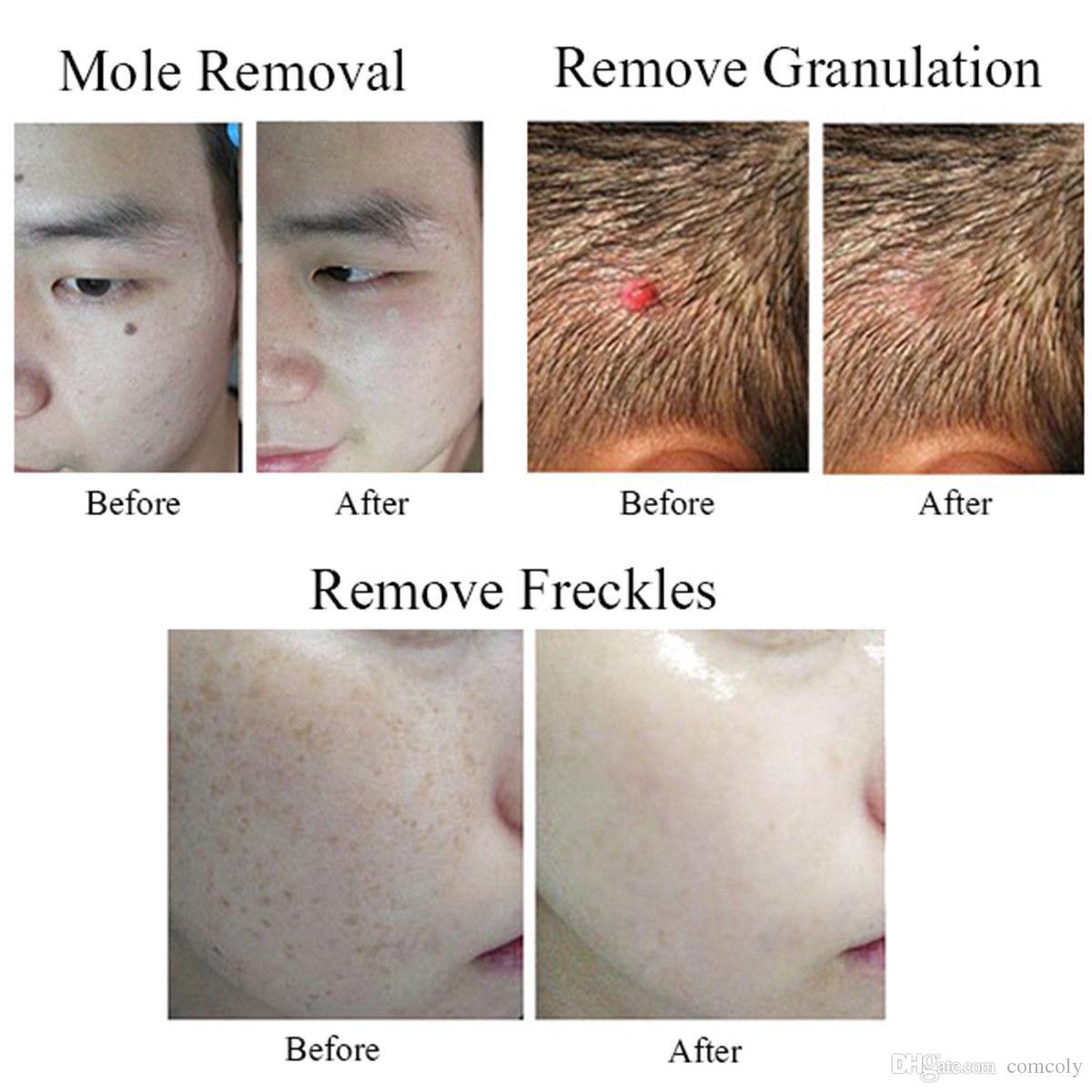 Cuidado de la piel Mole Freckle Tattoo Removal Machine Remoción de manchas oscuras Plasma Pen Skin Wart Tag Herramienta de eliminación de tatuajes Point Mole Pen