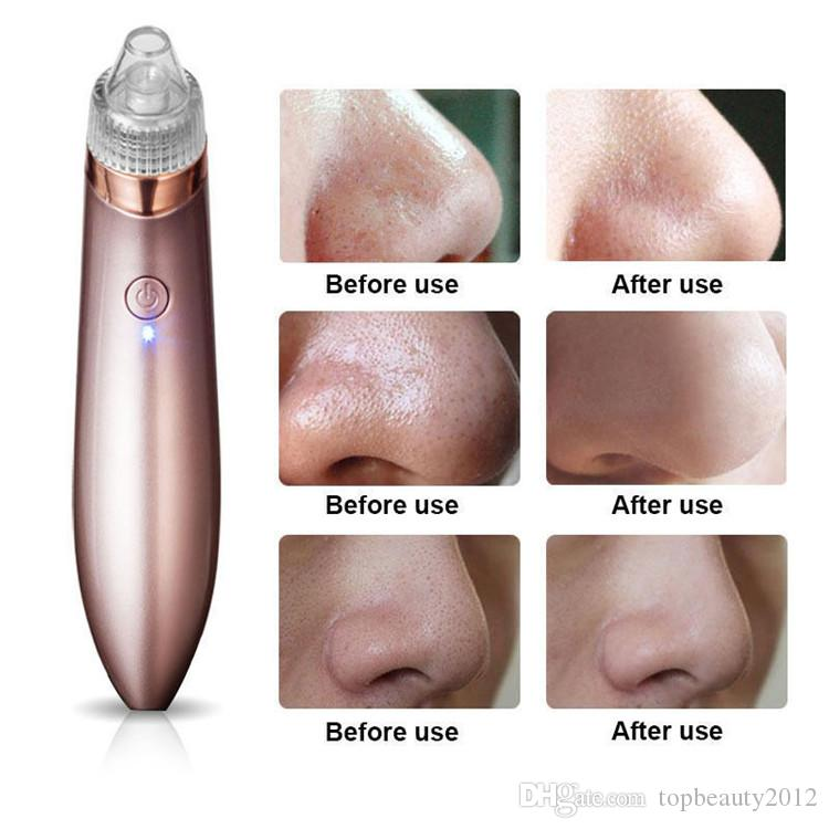 Diamond Dermabrasion Blackhead Vacuum Cleaner Suction Removal Scar Acne Peeling Face Pore Cleansing Tool Facial Skin Care Beauty Machine