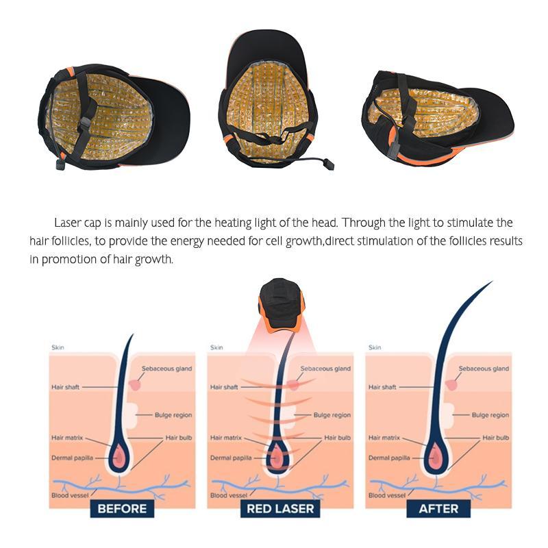 máquina melhor do cabelo do laser do produto 2020 novo modelo de crescimento do cabelo cap Laser do laser cabelo rebrota crescer levou luz terapia 650nm cap diodo