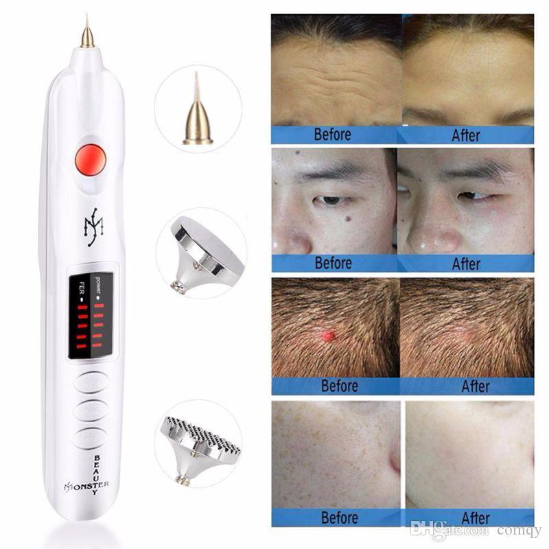 Pena de plasma de Fibroblasta de Beleza Profissional para Pálpebra Rosto Levante Remoção Remoção Mole Freckle Tattoo Removerel CE