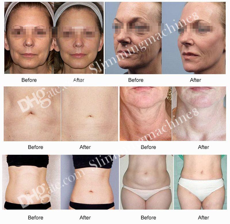 Best selling portable liposonix weight Loss slimming machine Fat reducing HIFU liposonix Slimming Firming lifting skin beauty equipment