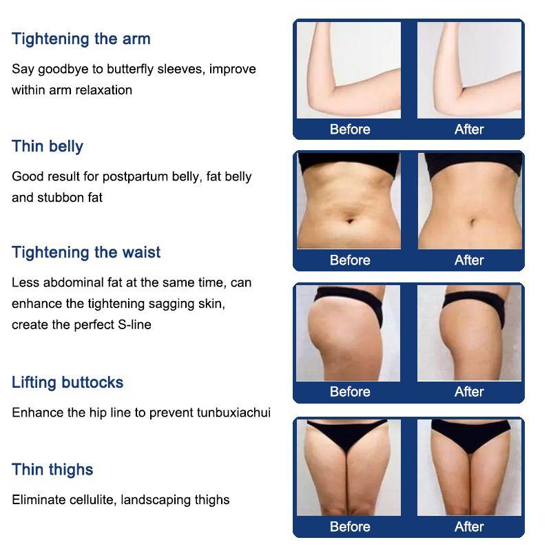 liposonix المحمولة lipohifu قوية HIFU الجسم آلة تشكيل لتخفيف الوزن لصالون استخدام الجودة liposonix 1050 طلقات