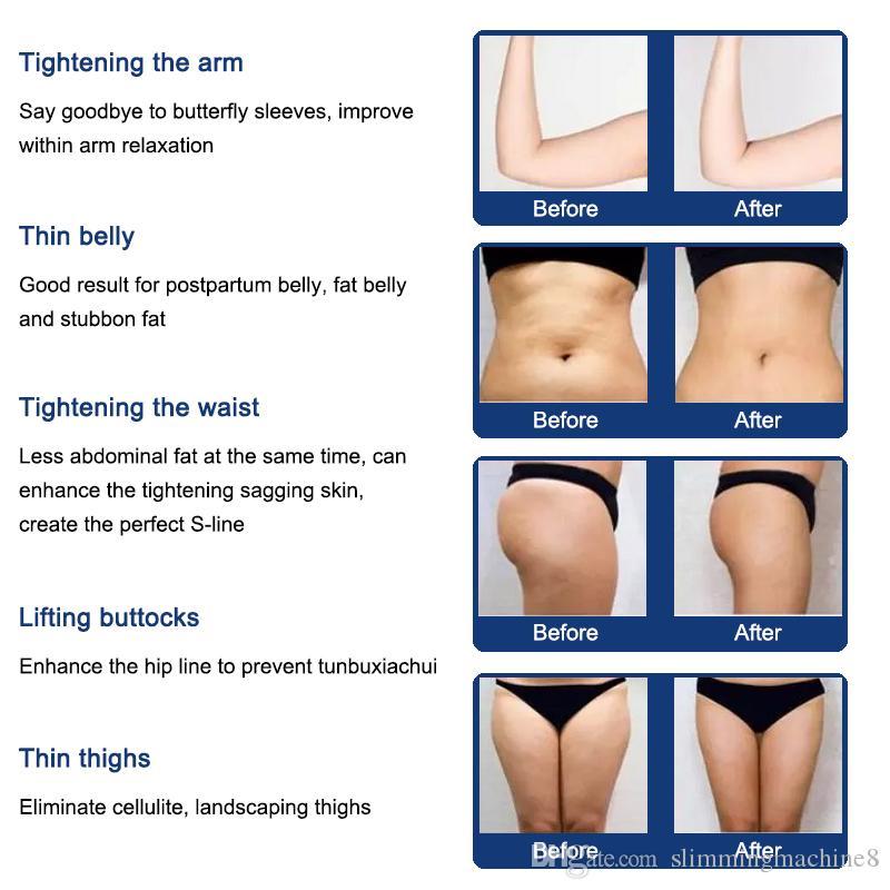 Non invasive Liposonix 2019 New Model Fat Reduction 2 خراطيش 8mm 13m mm body slimming cellulite removal fat burning