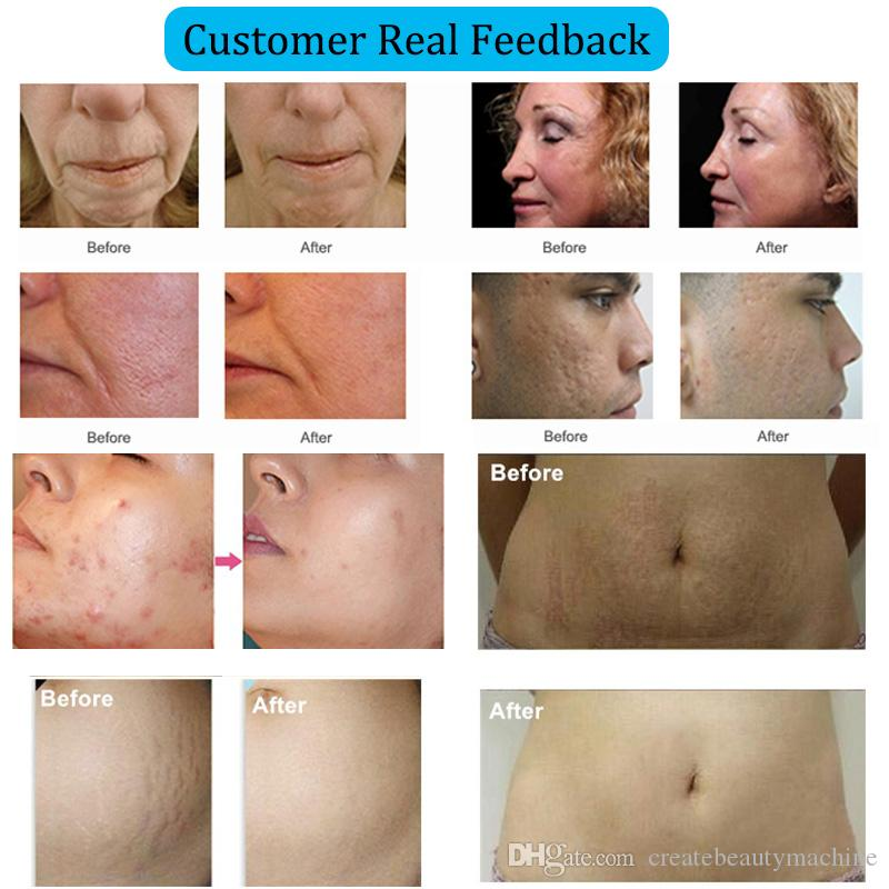 Fractional rf microneedle beauty machine micro needle system derma pen micro needling roller stretch marks removal