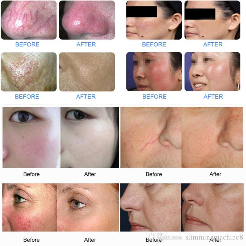 980nm Diodenlaser Gesicht Gefäßbehandlung Pilz Nägel Behandlung Hautverjüngung 980nm Besenreiser Entfernung Schönheit Maschine