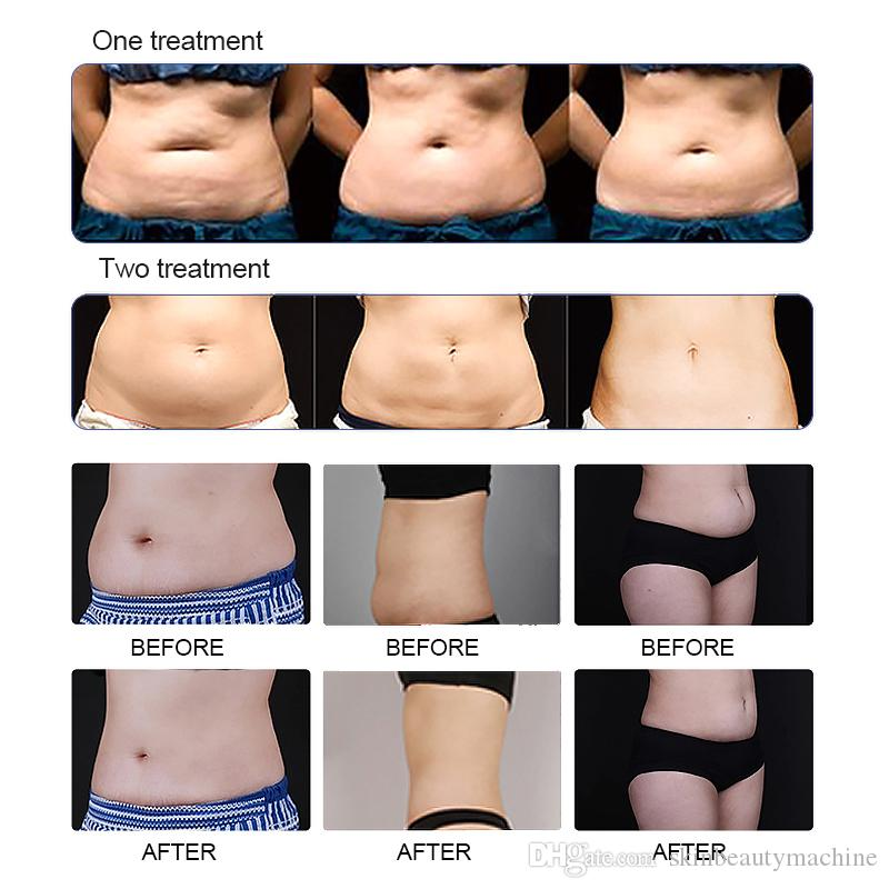 CE approved vertical cryolipolysis body face waist belly beauty vacuum cryolipolysis body slimming fat reduce machine