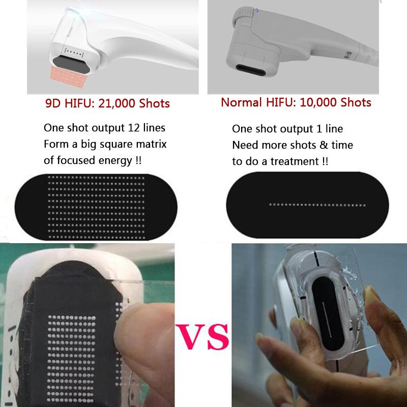 9d Hifu Bosy Slimming Slimming Care Facial Care Remoção Remoção Rosto Intensidade Focado LiSonix Equipamento de Beleza