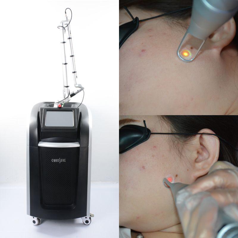 Tattoo Machine Pico Laser Remoção coreano pé picosecond picosecond preço de laser q comutado nd yag laser 1064 + 532 + 755